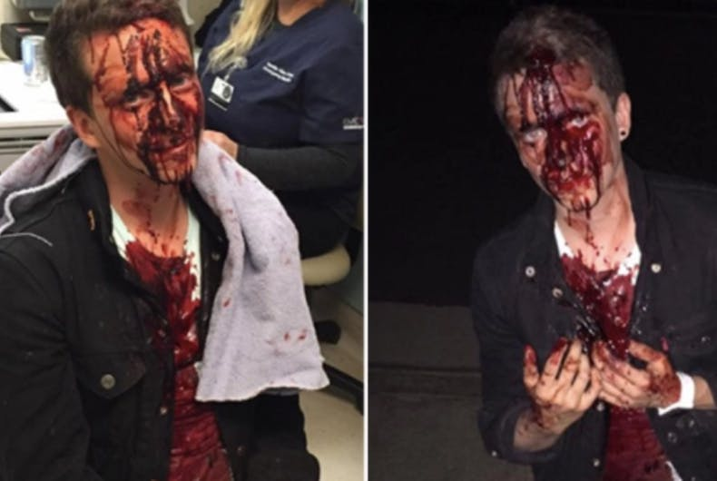 Gay man reportedly bashed by Trump supporters minutes after the election