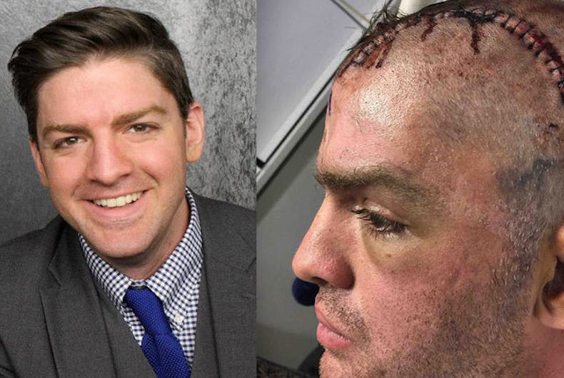 Masked men in Dallas beat gay actor to a pulp with wooden pole