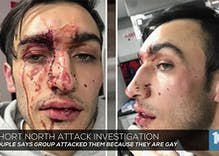 Violent attacks on gay men under investigation in Columbus & Nashville