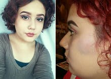 Photo of assaulted transgender teen goes viral as aunt pleads for justice