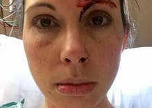 Restroom sexual assault victim outraged after Christians exploit her attack