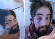 Two arrested in attack that left the victim blind in one eye
