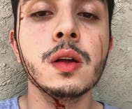 Gay man viciously beaten by his sister & brother-in-law
