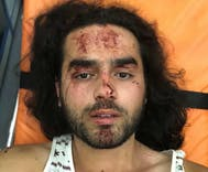 Village lynch mob attacks local LGBTQ people in brutal night of horror