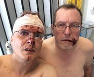 This gay couple was harassed by their neighbors for years. Then they were brutally attacked.
