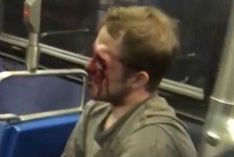 Bloodied would-be gay basher recovering after losing the fight