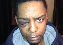 No one will go to jail in vicious gang-beating of a gay man even though his attackers were arrested