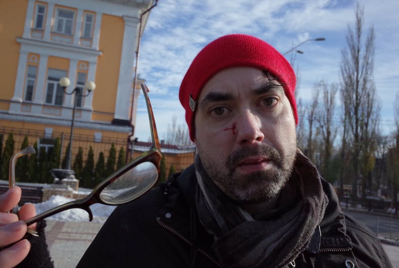 Michael Colbourne, a Canadian journalist who was injured at a TDOR event in the Ukraine