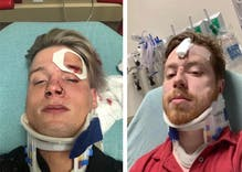 A gay couple was brutally attacked for holding hands in public. They're lucky to be alive.