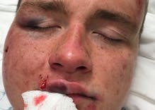 3 teens arrested for brutally attacking a gay couple, but up to a dozen more remain at large