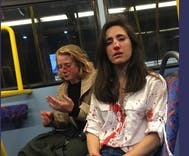 Lesbian couple brutally attacked for refusing gang of thugs' demand that they kiss