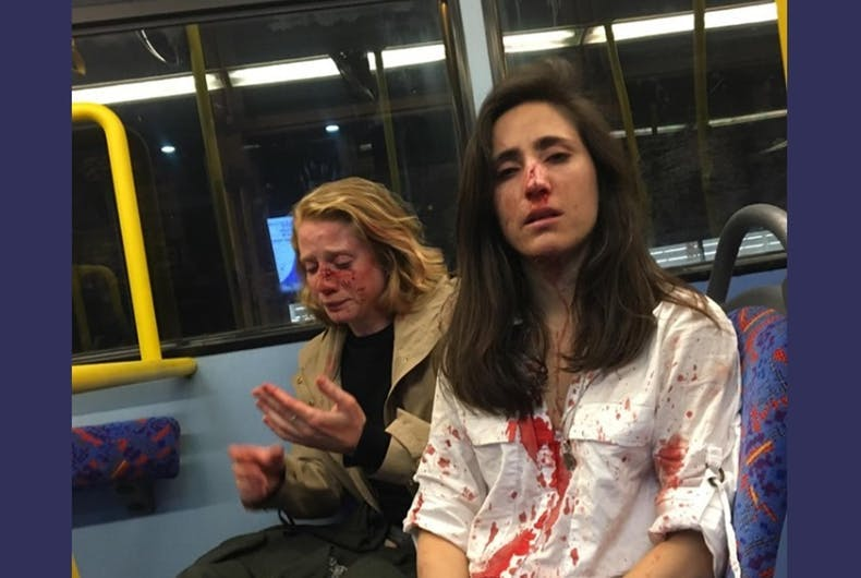 Melania Geymonat, lesbian bashing victim and her girlfriend Chris have blood on their faces and clothes while riding the bus.