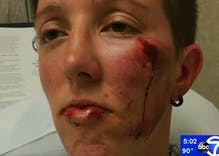 A man viciously beat a lesbian couple while calling one of women 'a dude'