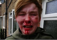 Teenager severely beaten by women who screamed 'f–king lesbian' while they hit her