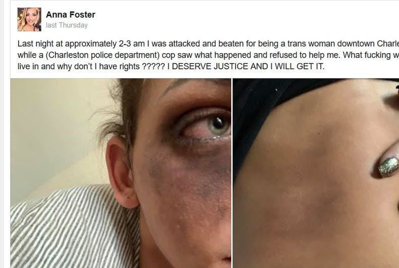 Anna Foster's Facebook post on the hate crime