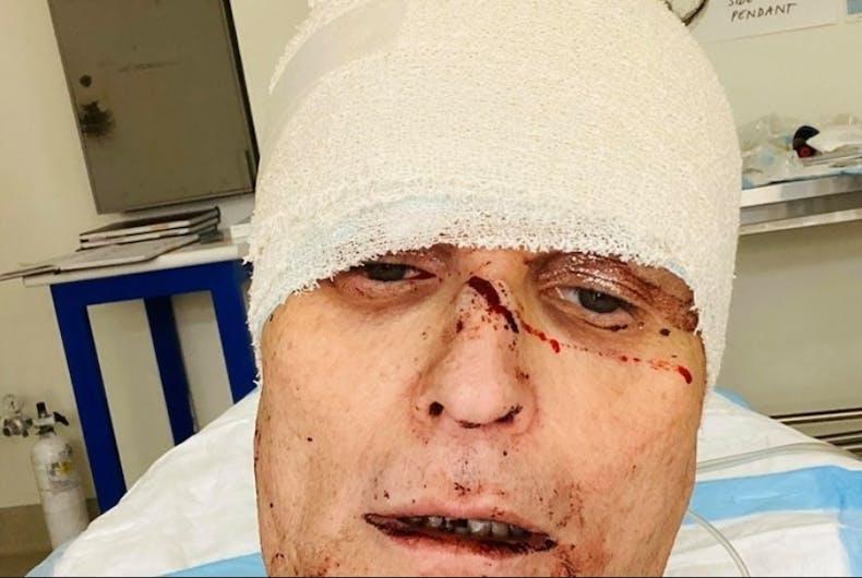 Joseph Stanislav's facial injuries.