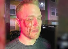 "Gay man called ""fa***t"" & beaten unconscious. That's a misdemeanor & not a hate crime in Oklahoma."