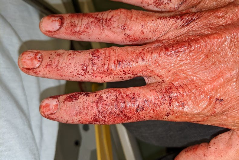Matt Foreman's hand was covered in blood as he waited for help to arrive.